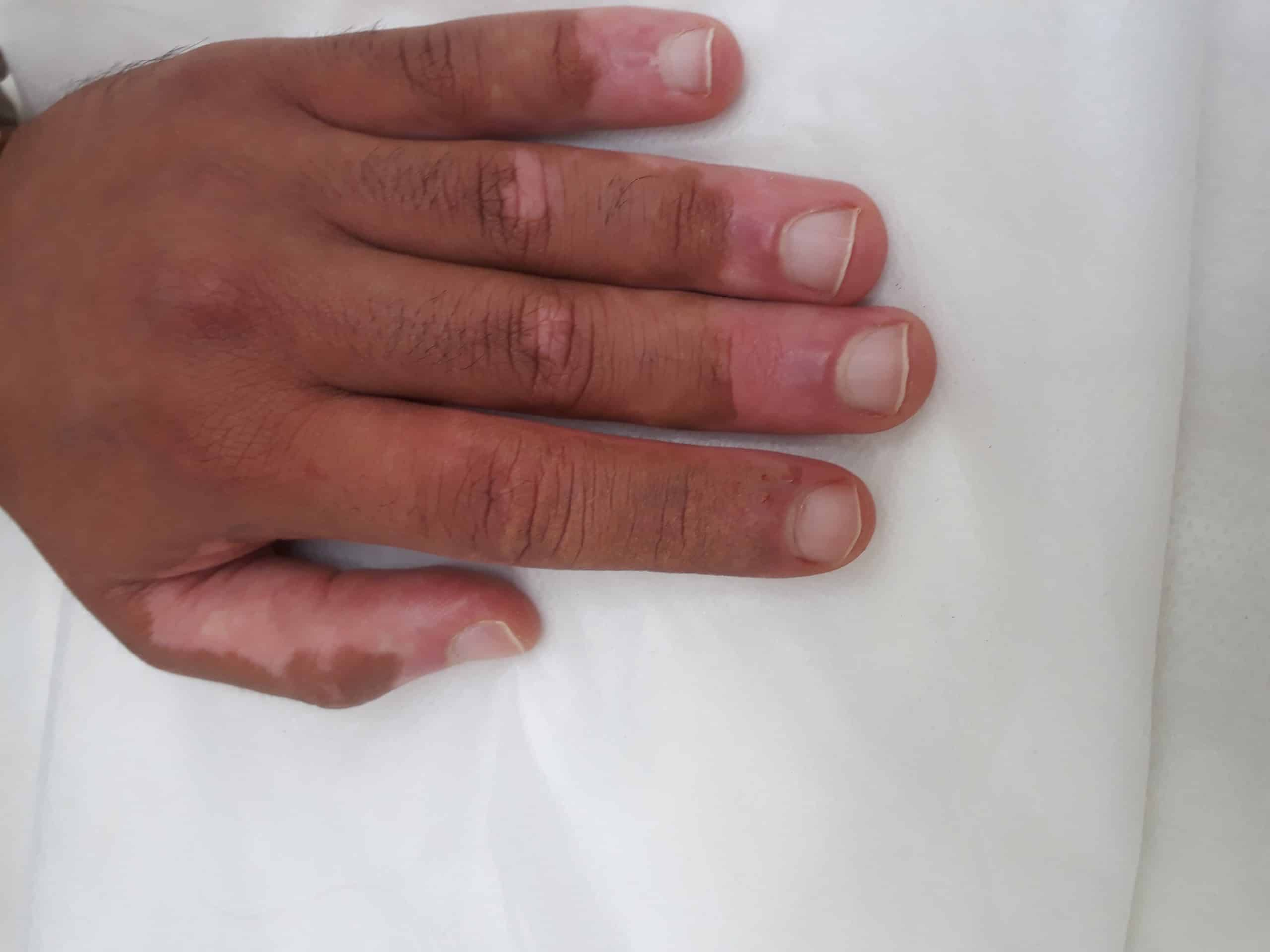 טשטוש ויטיליגו באצבע
