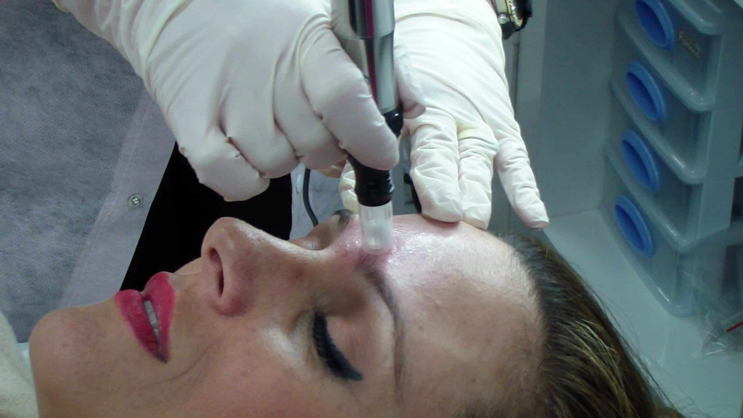 מזותראפיה טיפול פנים קוסמטיקה