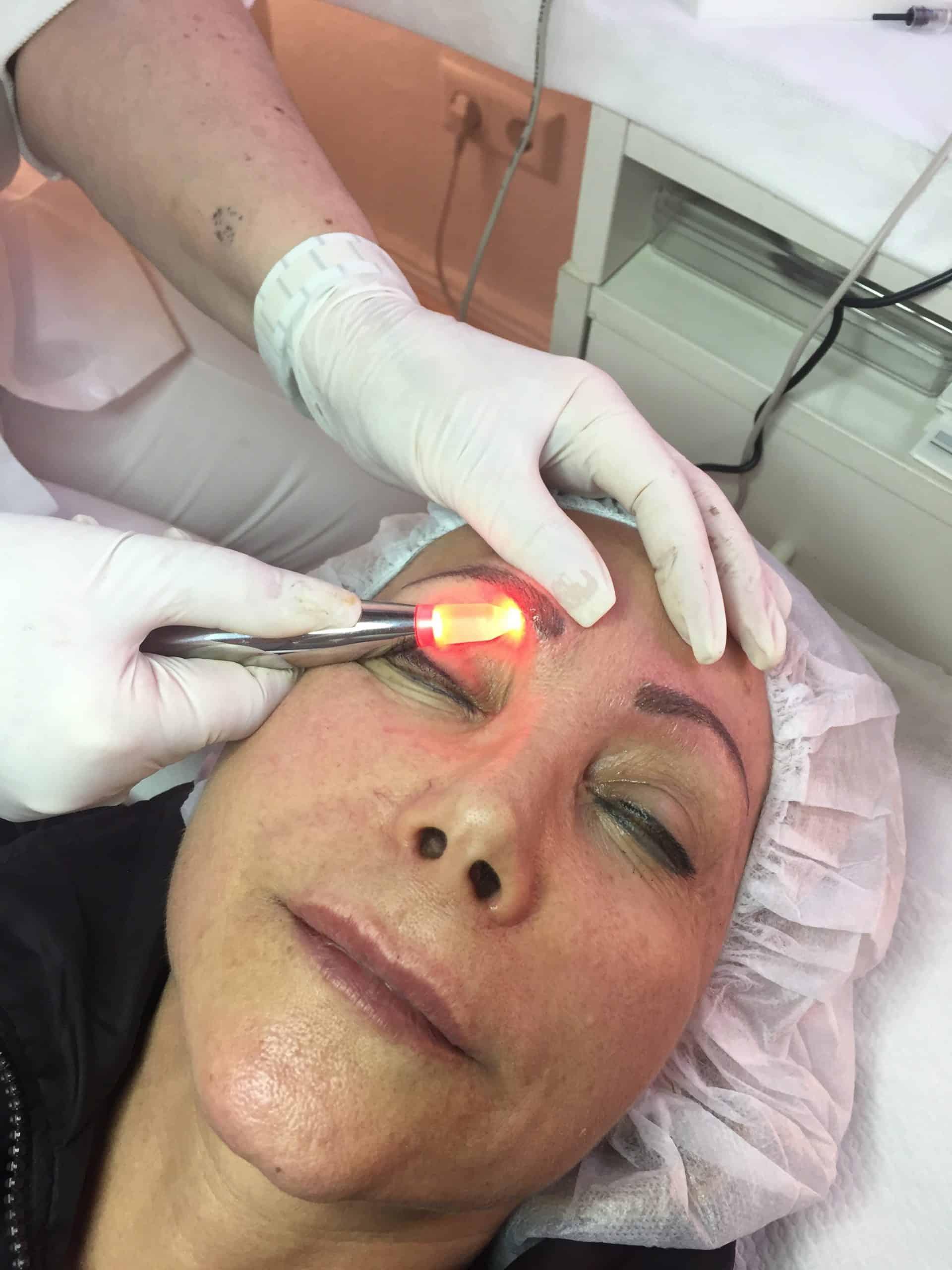תיקונים ומחיקה של איפור קבוע