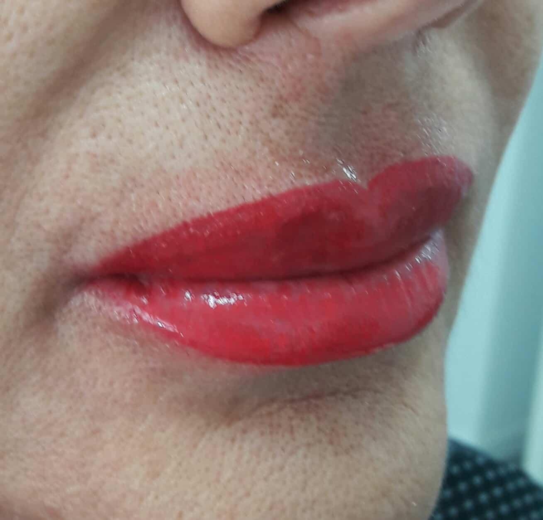 שפתיים- תיחום ומילוי