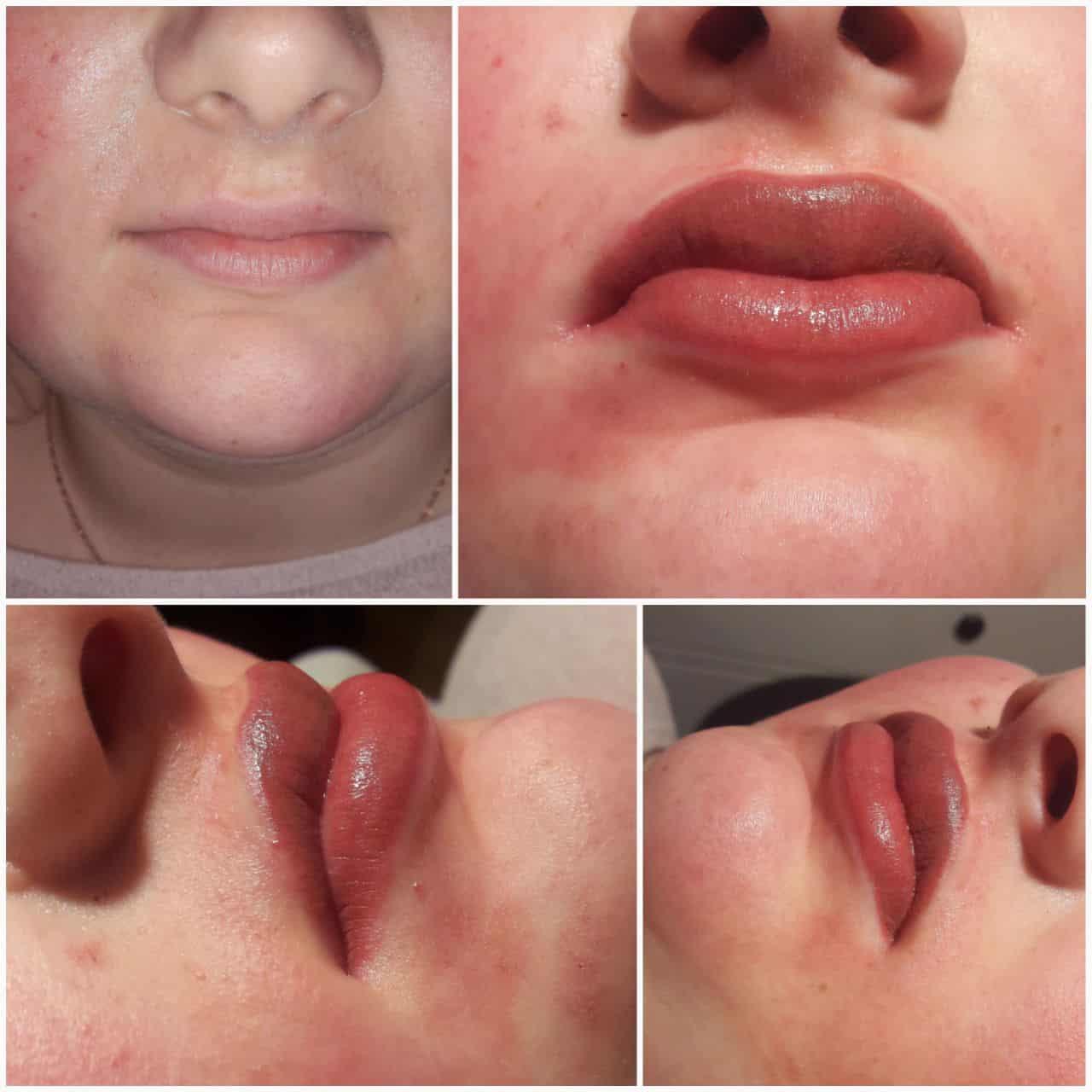 תיחום ומילוי שפתיים בטכניקת הננו