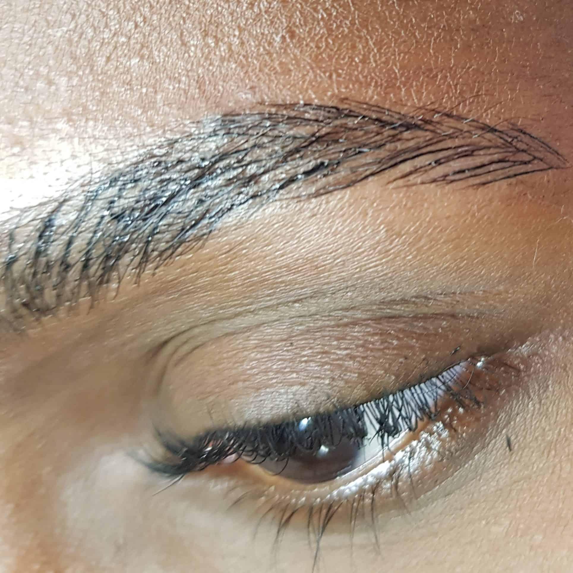 שיטת השערה על עור כהה